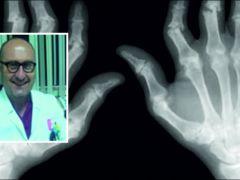 Artrit Birçok Hastalığa Neden Oluyor